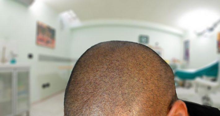 micropigmentazione-catania