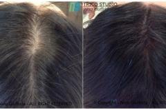 tricopigmentazione-rinfoltimento