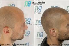tricopigmentazione-1
