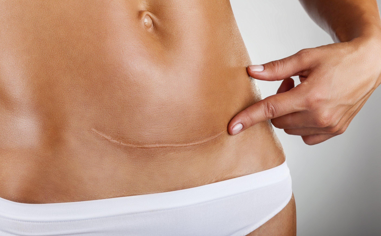 dermopigmentazione correttiva