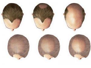 La tricopigmentazione è un trattamento indolore?