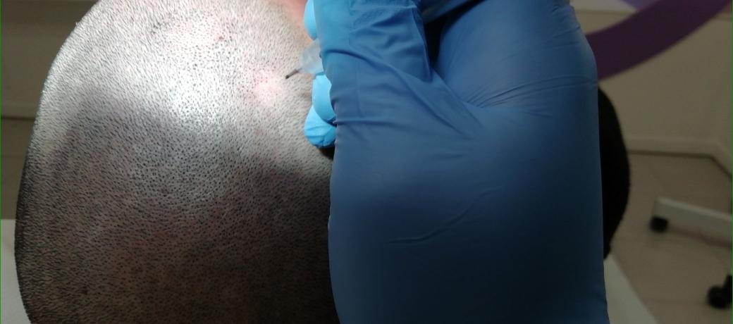 slider tricopigmentazione