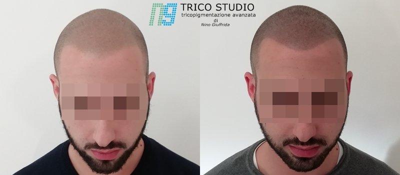 tricopigmentazione differenza con tricopigmentazione avanzata